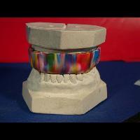 Ortodonti Apareyler