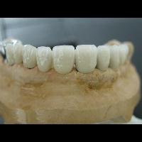 Porselen Kopru1
