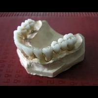 full zirkon implant 11