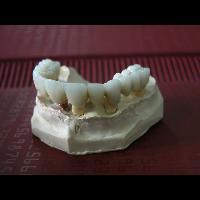 full zirkon implant 2