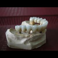 full zirkon implant 3