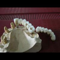 full zirkon implant 4