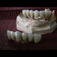 full zirkon implant 5