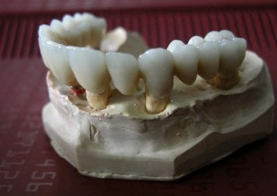 full zirkon implant 6