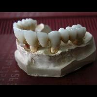 full zirkon implant 6