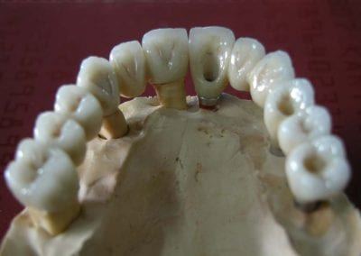 full zirkon implant 7