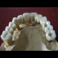 full zirkon implant 7