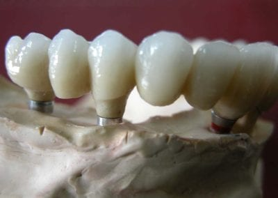 full zirkon implant 8