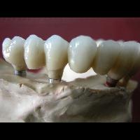 full zirkon implant 8
