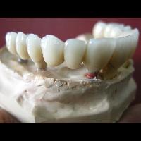 full zirkon implant 9