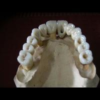 full zirkon implant